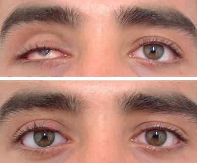 Ottica Garagnani - Protesi oculari